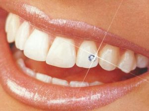 Sparkling Teeth